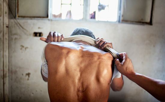 A torture survivor shows scars on their back