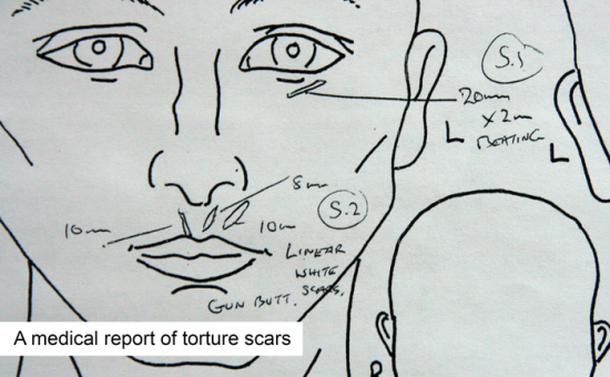 A line drawing of a face with doctors notes detailing the scars from torture